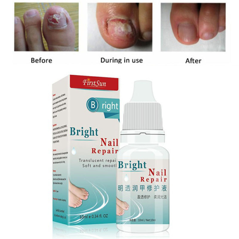 Nail Fungus Treatment Cream Paronychia Anti Fungal Infection Toe ...